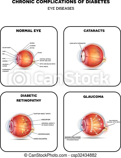 Diagrama Diabetico Ojo Enfermedades Diseases Detallado