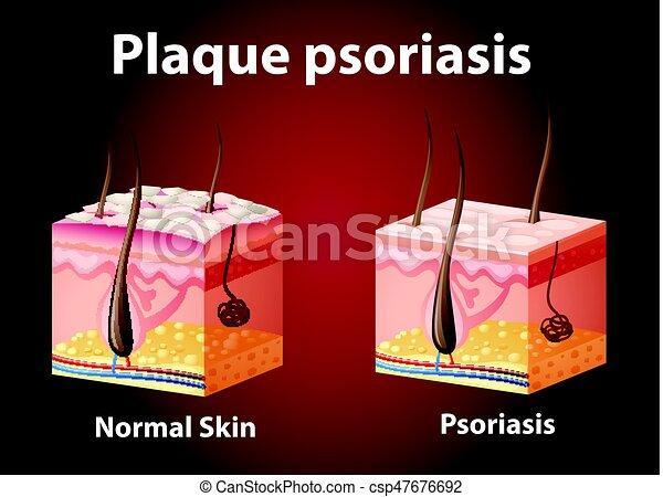 diagramme, psoriasis, projection, plaque - csp47676692