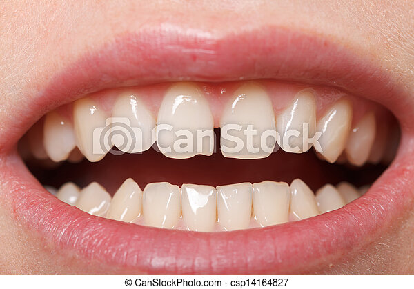 Diastema  between the upper incisors - csp14164827