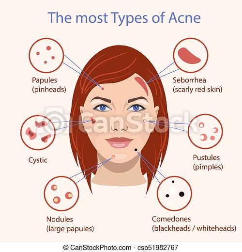 Different type of acne  Vector Illustration with skin problems