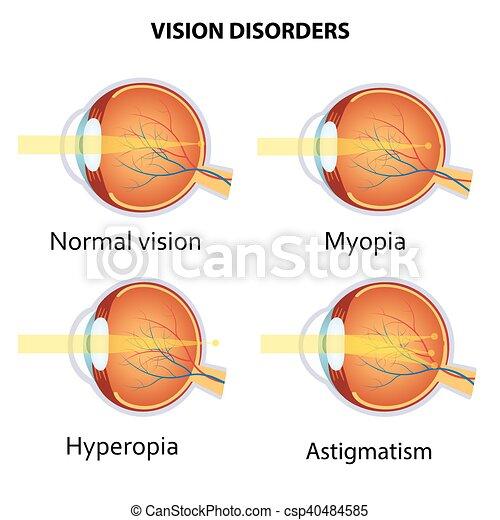 disorders., comum, visão - csp40484585