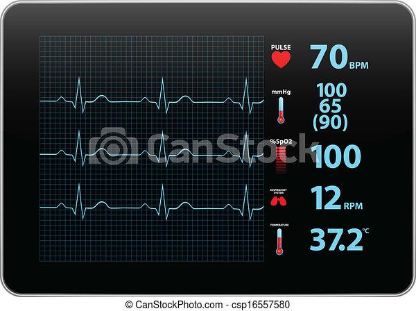 Un dispositivo de monitoreo electrocardiograma - csp16557580