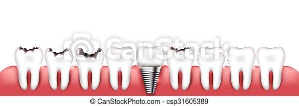divers, conditions, dents - csp31605389