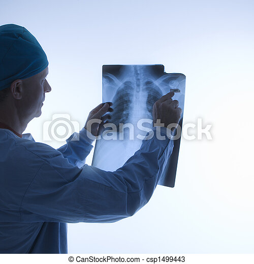 Doctor reading xray. - csp1499443