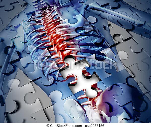 dos, humain, maladie - csp9956156
