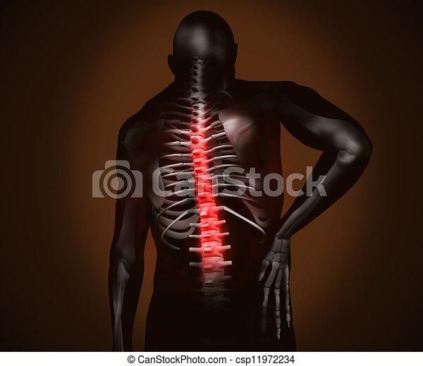 douleur, noir, numérique, dos, homme - csp11972234