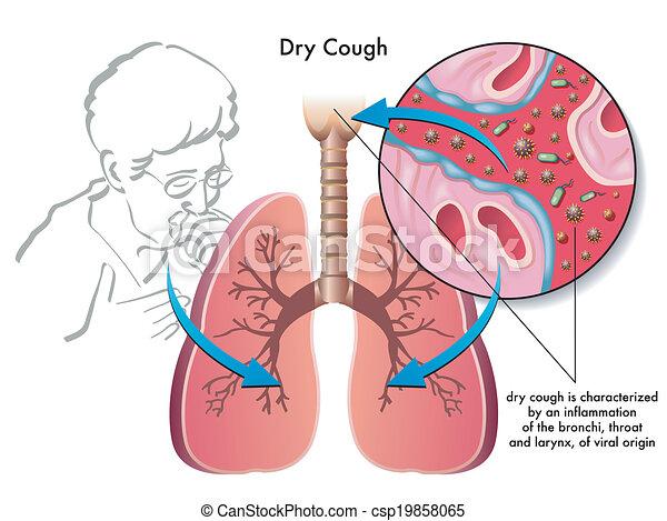 dry cough - csp19858065