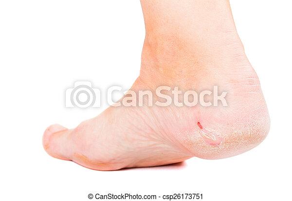 Dry skin on heel - csp26173751