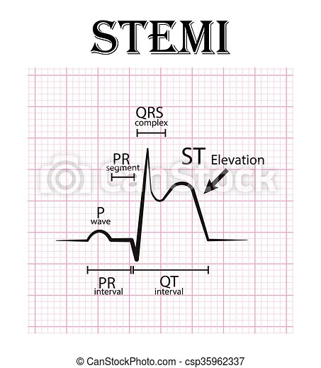 ECG of ST elevation myocardial infarction ( STEMI ) and detail of ECG ( P wave , PR segment , PR interval , QRS complex , QT interval , ST elevate , T wave ) Acute coronary syndrome , angina pectoris - csp35962337