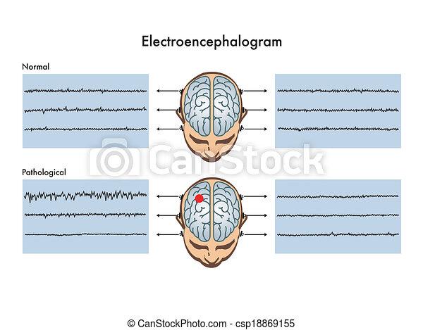 electroencephalogram - csp18869155