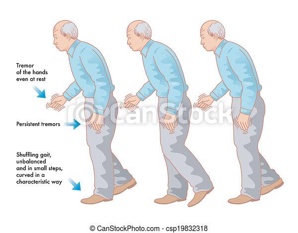 La enfermedad de Parkinson - csp19832318