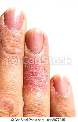 Ill dematitis alérgica piel sarpullido dedo eczema - csp28772451