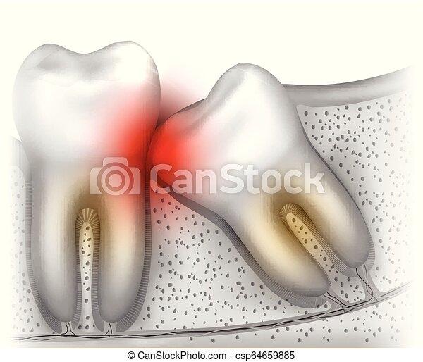 Problemas de erupción en los dientes - csp64659885