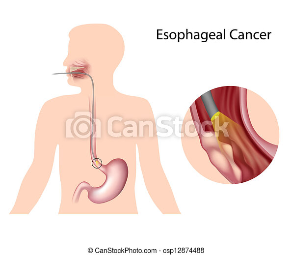 Esophageal cancer , eps10 - csp12874488