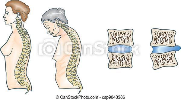 La espina humana - csp9043386