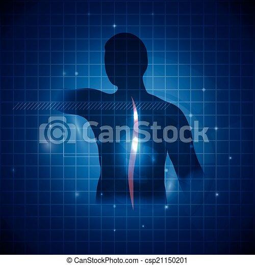 Espina dorsal, vertebral, acento, columna, humano. Dolor de ...