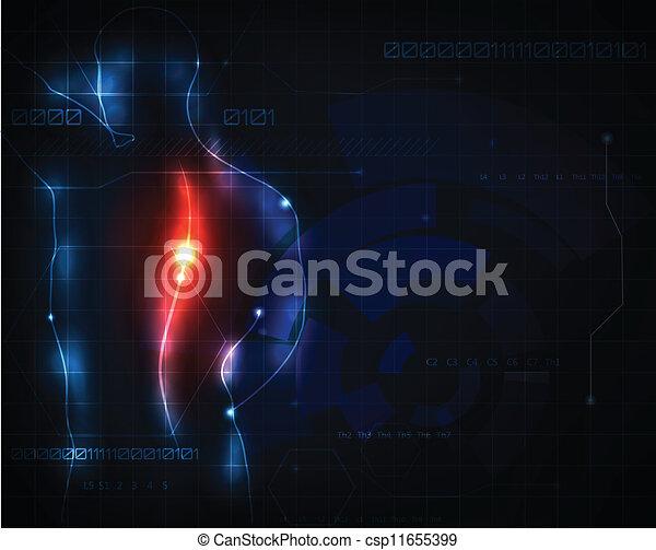 espinha, dor - csp11655399
