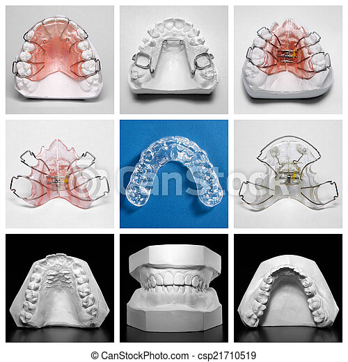 Essix retainers and study models - csp21710519
