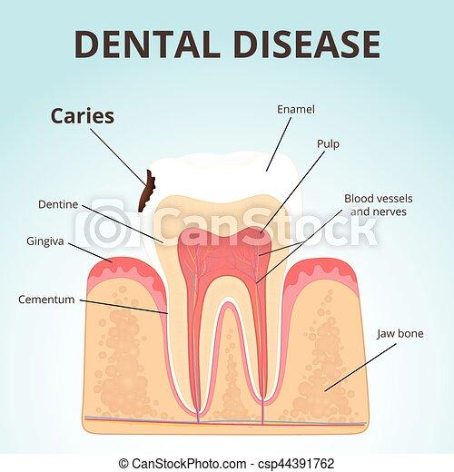 Estructura, dientes humanos. Decaimiento, dental, -, enfermedad ...