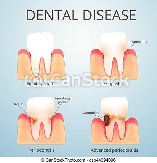 Estructura, dientes humanos. Desarrollo, cálculo, dental, enfermedad ...