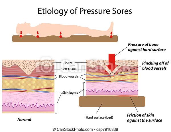 etiology, tryk, sores, eps8 - csp7918339