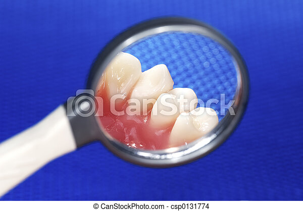 Examen dental - csp0131774