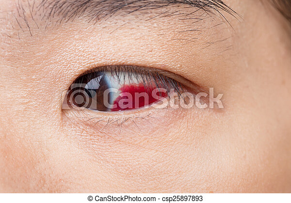 Eye injury or infected for healthy concept, macro closeup  - csp25897893