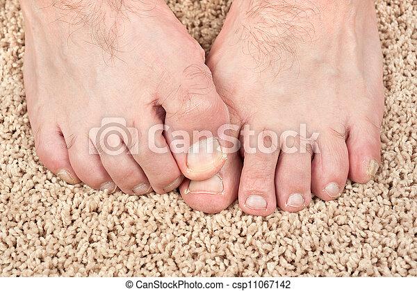 fötter som kliar