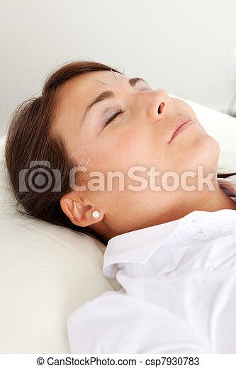 Facial Beauty Acupuncture Treatment - csp7930783