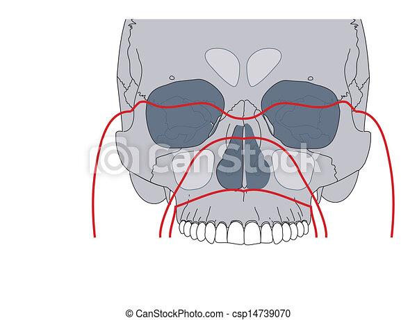 Facial fractures - csp14739070