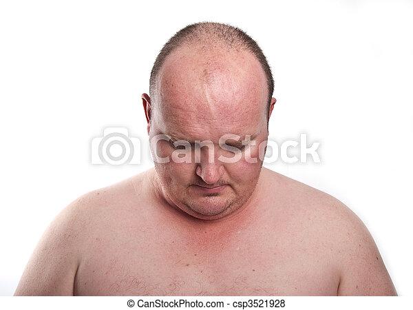 Schließen Sie die Porträtaufnahme von übergewichtigen Männern - csp3521928