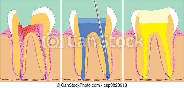 fase, vetorial, odontologia, três, ilustração - csp3823913