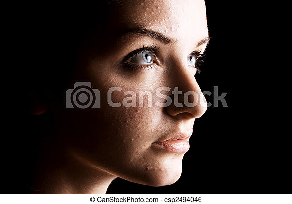 Female acne sufferer - csp2494046