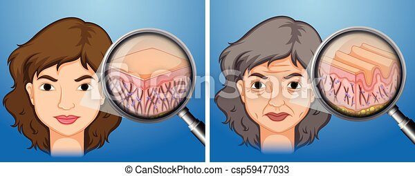 Illustrations facial aging