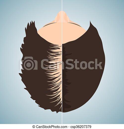 femme, chauve, après, cheveux, traitement, avant - csp36207379
