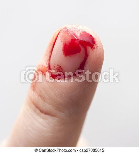 Finger prick - csp27085615