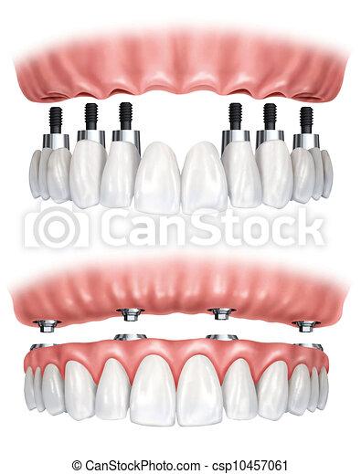 fogászati, hiányzó végtag pótlása - csp10457061