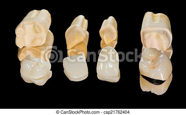 fogászati, kerámiai, kidomborít - csp21762404