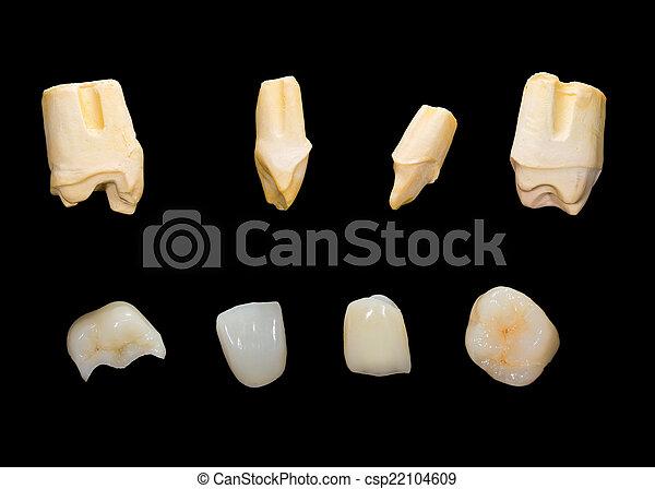 fogászati, kerámiai, kidomborít - csp22104609