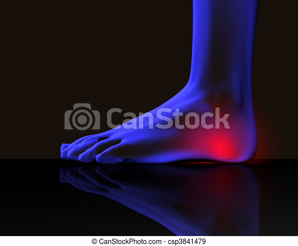 Foot and pain - csp3841479