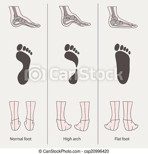 foot - csp20996420