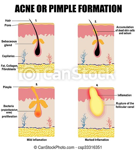 Formation Of Skin Acne Or Pimple For Basic Medical Education For