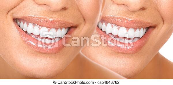 Frauenzähne - csp4846762