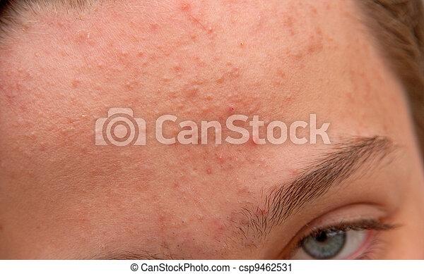 La frente de acné - csp9462531