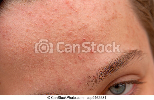 front, acné - csp9462531