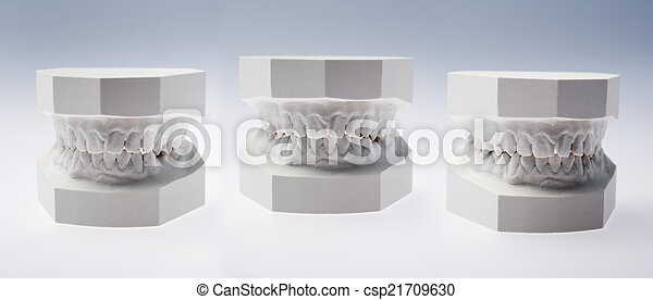 Front view of a plaster study model - csp21709630