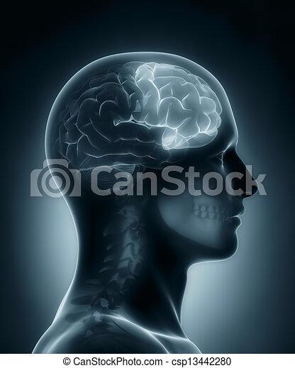 Frontal lobe medical x-ray scan - csp13442280