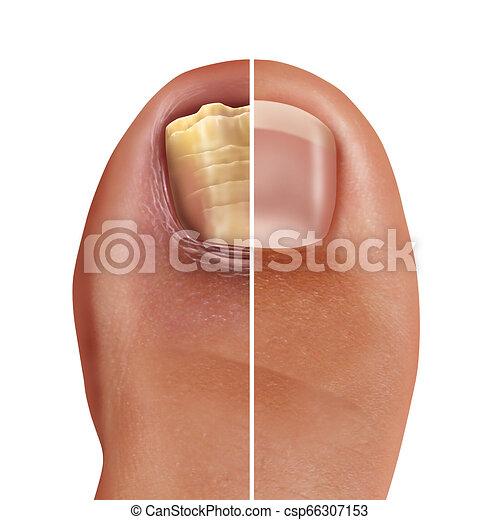 Fungal nail infection. Fungal nail infection and onychomycosisor ...