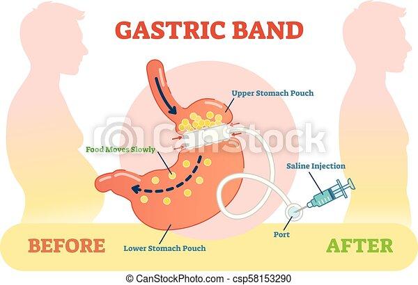 Gastric Band anatomical vector illustration diagram, medical before after scheme. - csp58153290