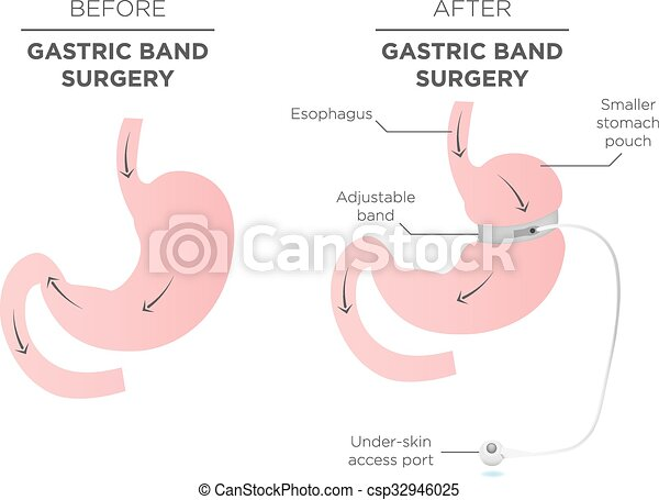 Gastric Band for Weight Loss. - csp32946025